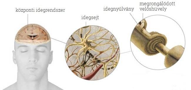 SM Sclerosis multiplex